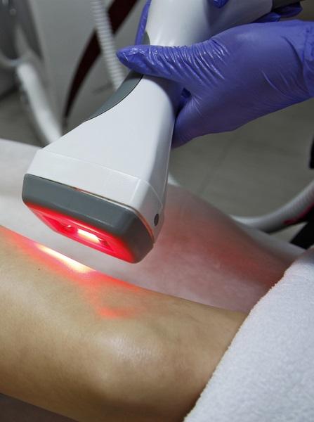 Laser LipoRadioLogie Vinci 1